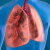 What Is The Most Common Type Of Interstitial Lung Disease?