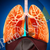Why is Early Treatment Necessary for Idiopathic Pulmonary Fibrosis?