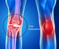 Patellofemoral Pain Syndrome Exercises and Physical Therapy