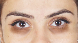 Goodness of Almond Oil To Get Rid of Dark Circles