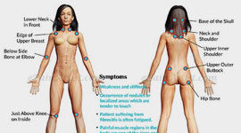 What is Fibrositis and How can it be Treated?