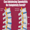 Can Ankylosing Spondylitis Be Completely Cured?