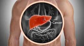 What Is The Best Medicine For Liver Metastases?