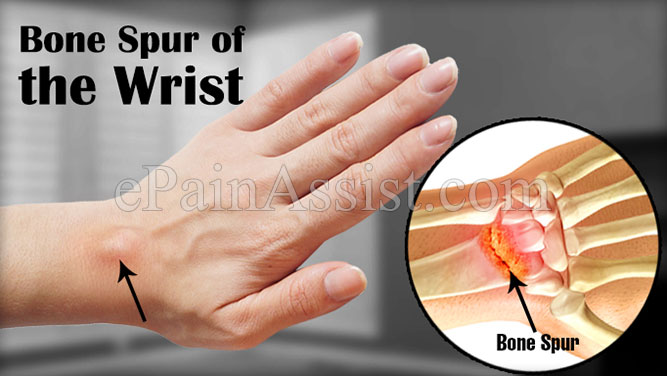 How To Get Rid of Musculoskeletal Pain In Hindi