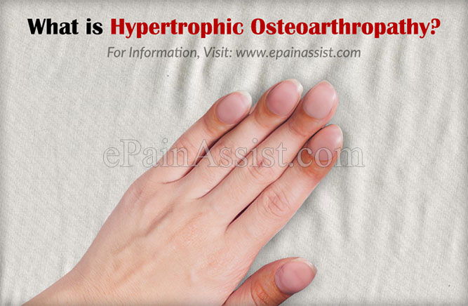 What is Hypertrophic Osteoarthropathy?