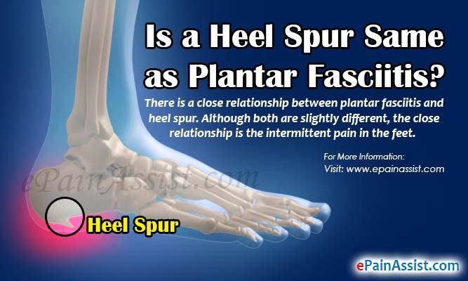 6d2f877929 Is a Heel Spur Same as Plantar Fasciitis: Differences Worth Knowing