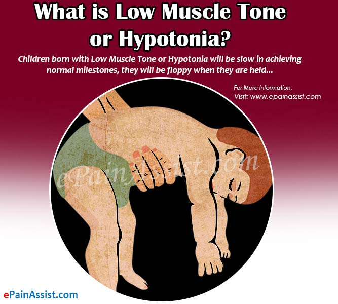 What is Low Muscle Tone or Hypotonia?