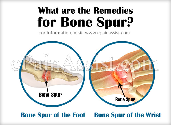 What are the Remedies for Bone Spur?