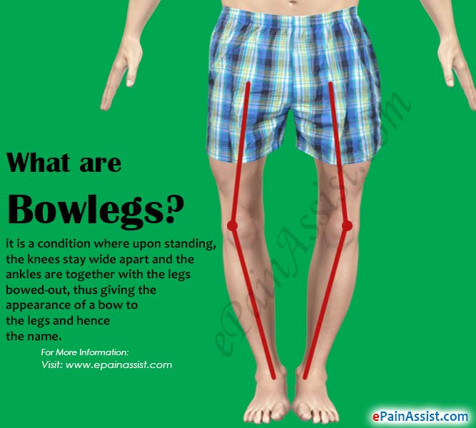 Bowlegs or Bandy Legs|Causes|Symptoms|Treatment|Surgery ...
