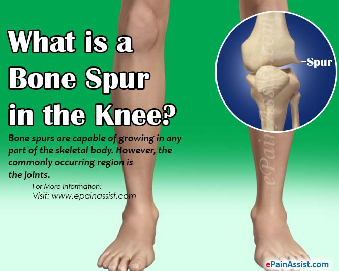 What is a Bone Spur in the Knee?