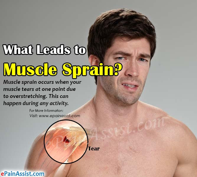What Leads to Muscle Sprain?