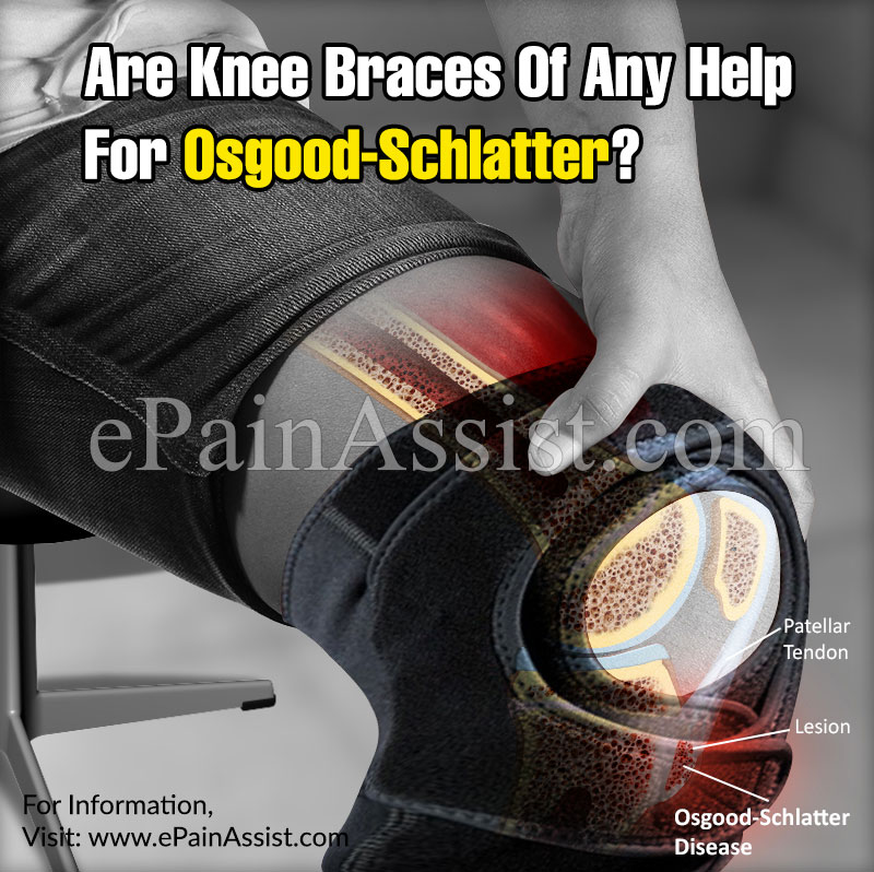 Are Knee Braces Of Any Help For Osgood-Schlatter?