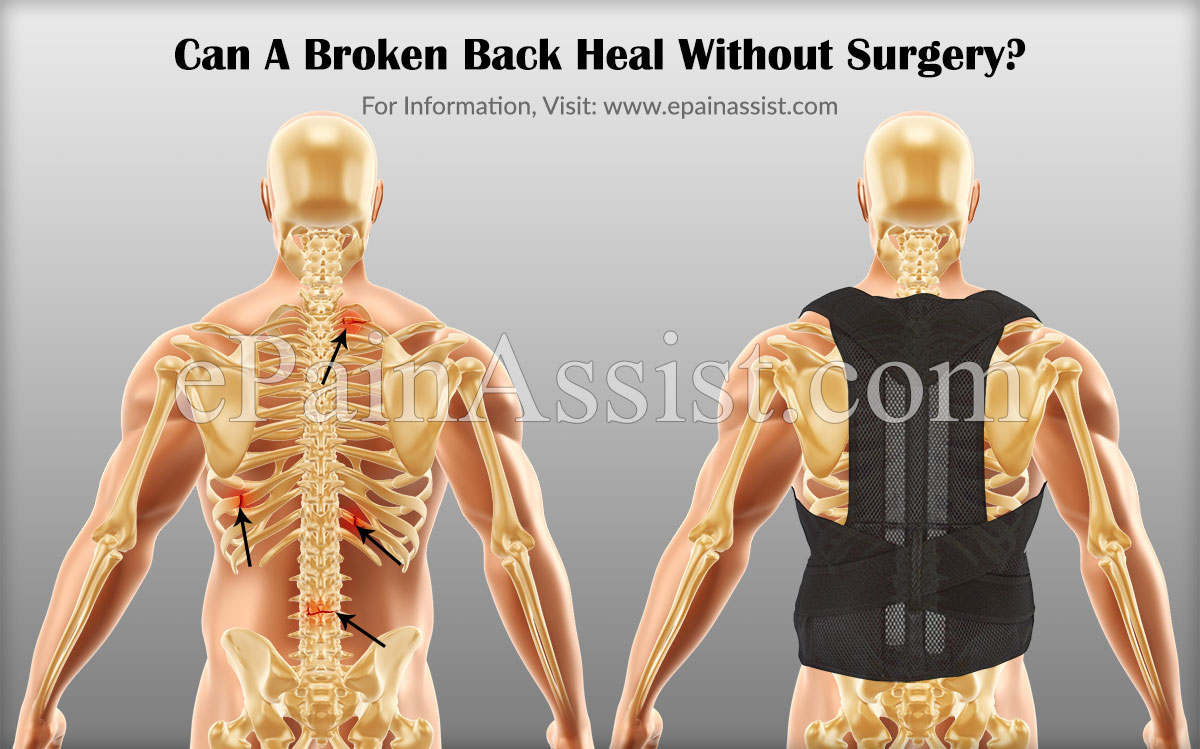 Can A Broken Back Heal Without Surgery?