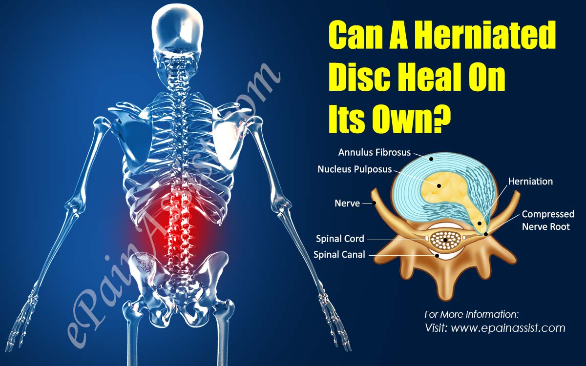 can a herniated disc heal on its own