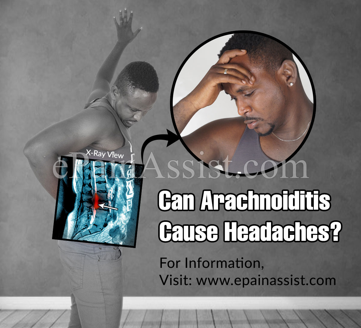 Can Arachnoiditis Cause Headaches?