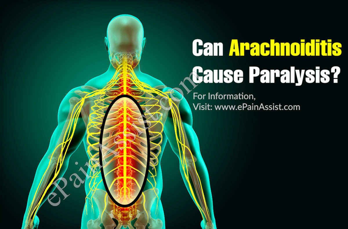 Can Arachnoiditis Cause Paralysis?