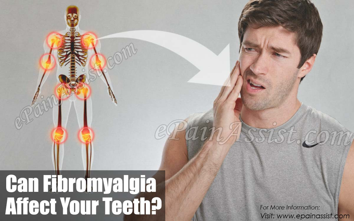 Can Fibromyalgia Affect Your Teeth?