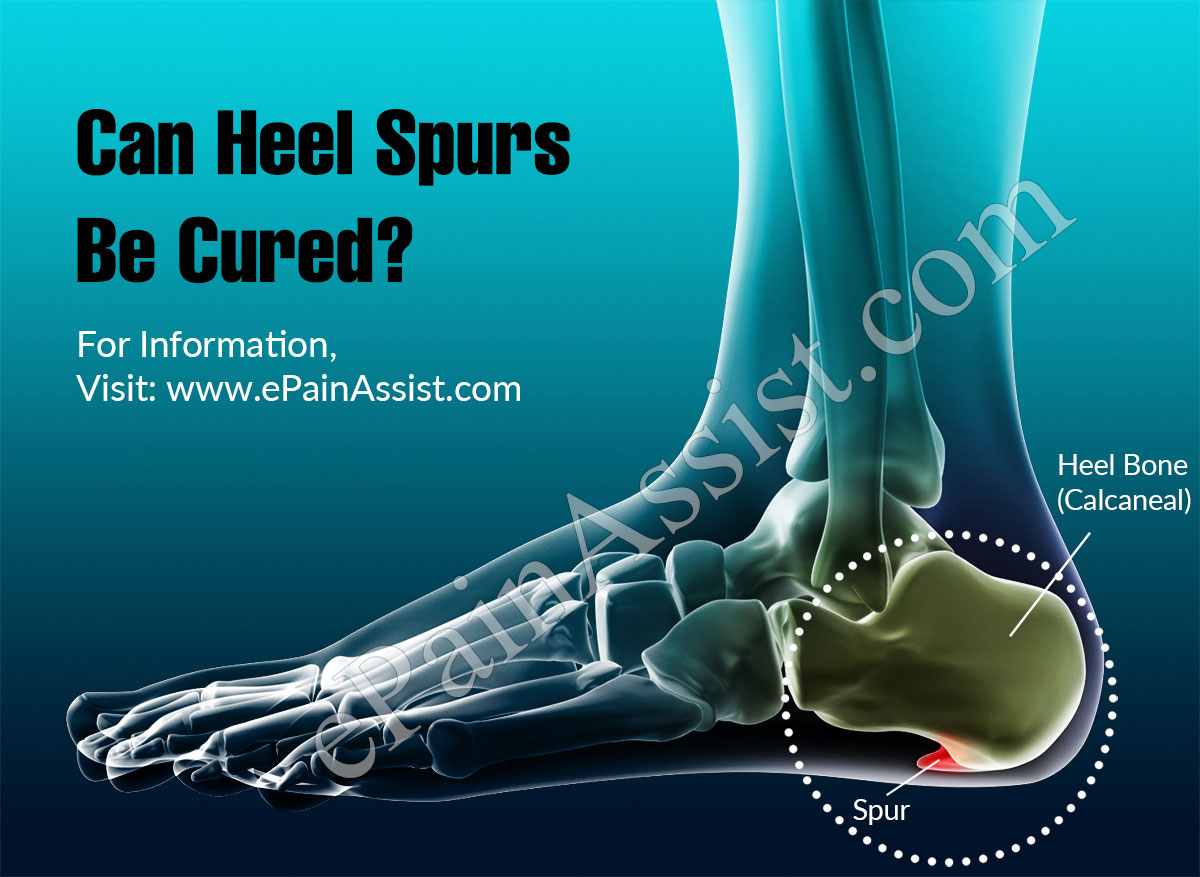 Can Heel Spurs Be Cured?