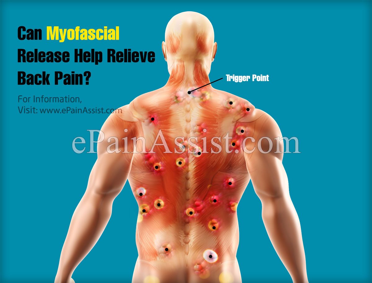Can Myofascial Release Help Relieve Back Pain?