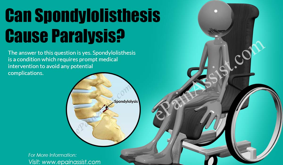 Can Spondylolisthesis Cause Paralysis?