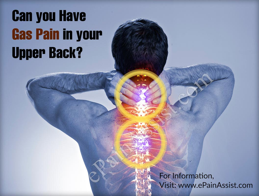 Can You Have Gas Pain In Your Upper Back?