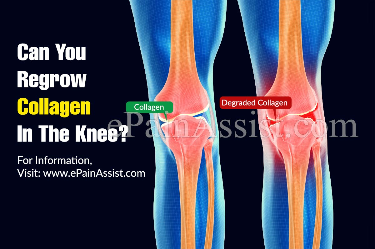 Can You Regrow Collagen In The Knee?