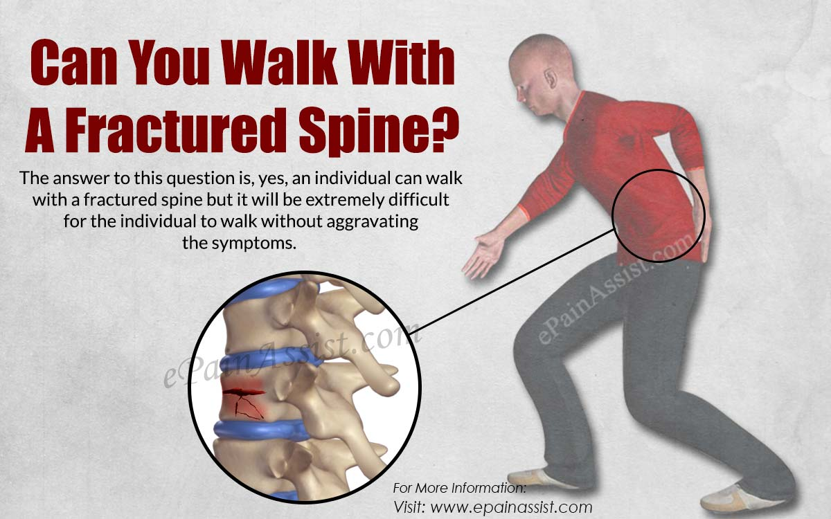 Can You Walk With A Fractured Spine?