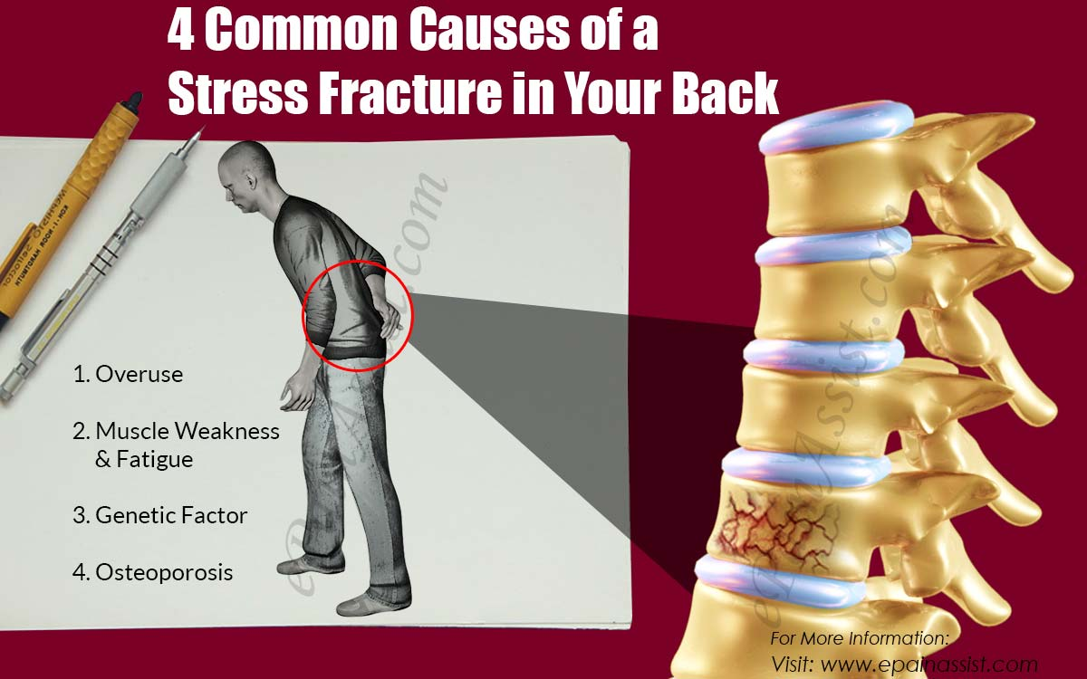 4 Common  Causes of a Stress Fracture in Your Back