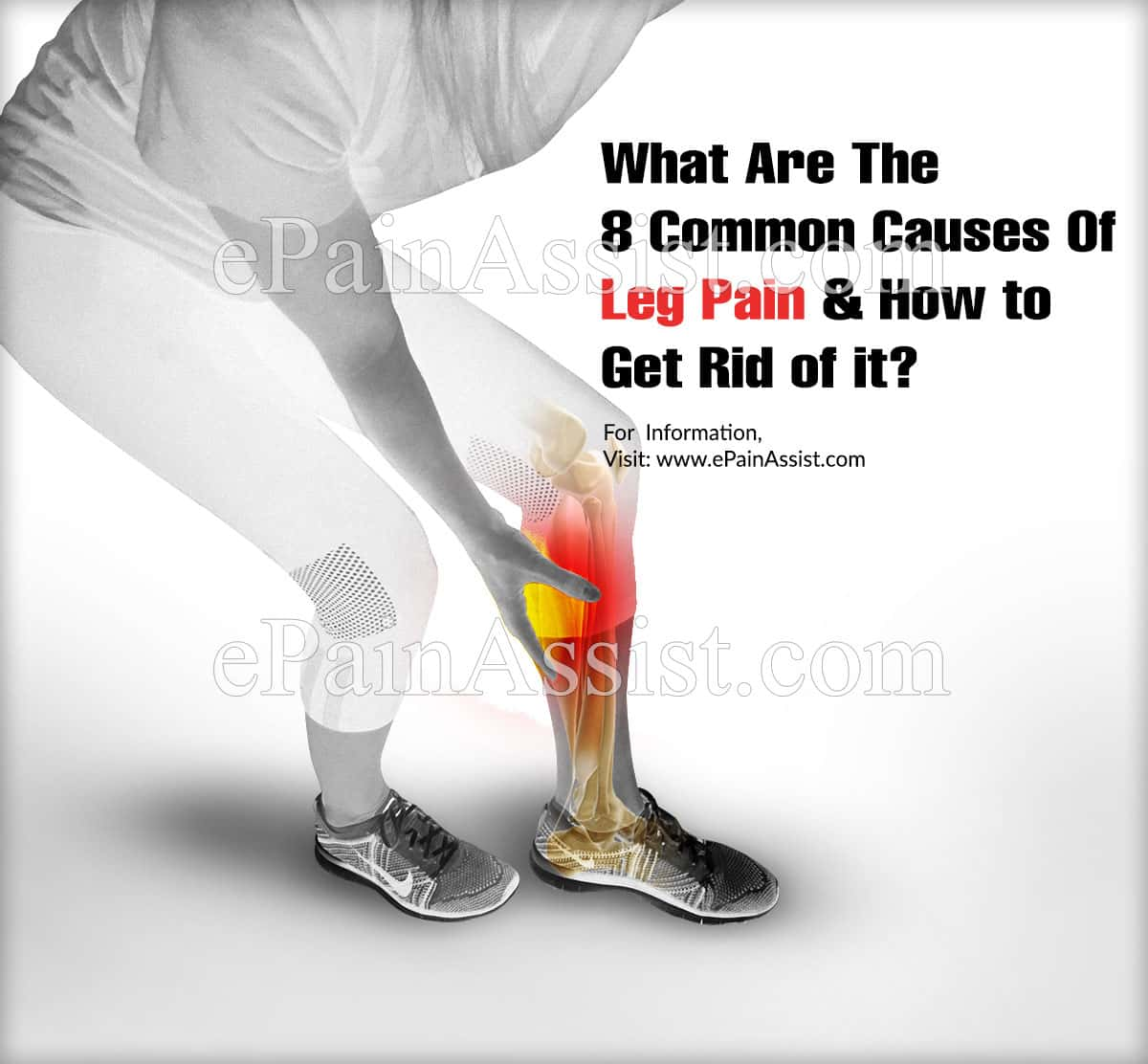 What Are The 8 Common Causes Of Leg Pain & How Can I Get Rid Of It?
