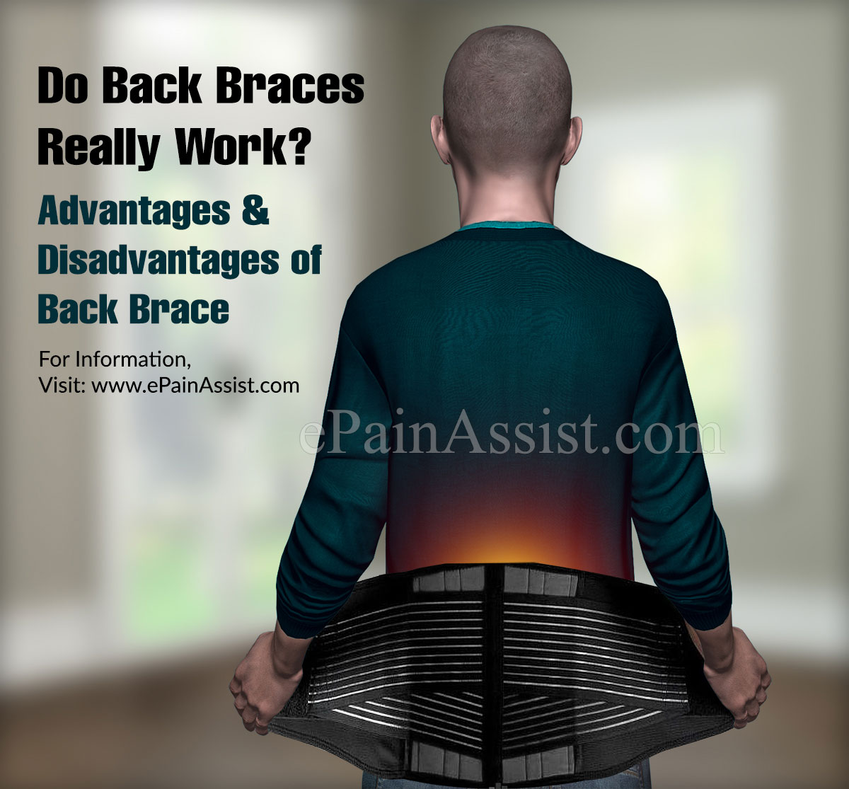 Do Back Braces Really Work?