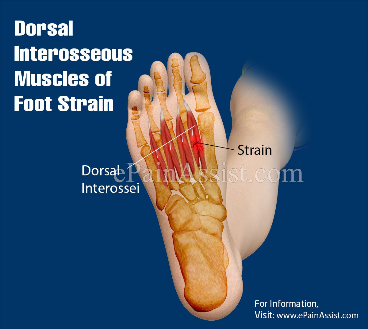 Dorsal Interosseous Muscles Of Foot Straincausestreatmentrecovery