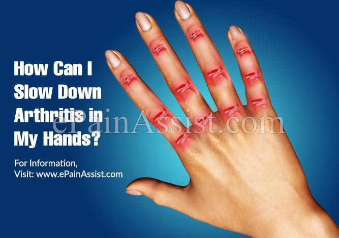 How Can I Slow Down Arthritis in My Hands?