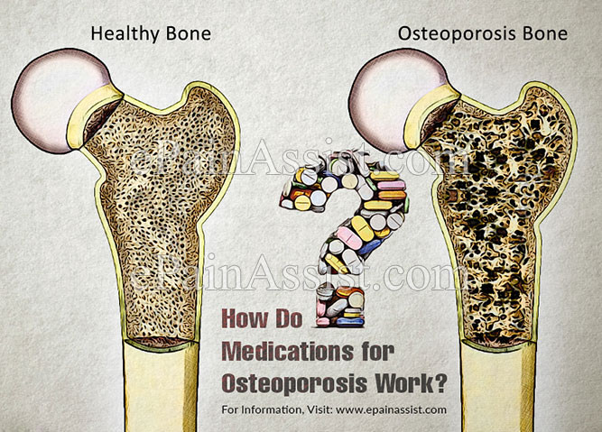 How Do Medications for Osteoporosis Work?