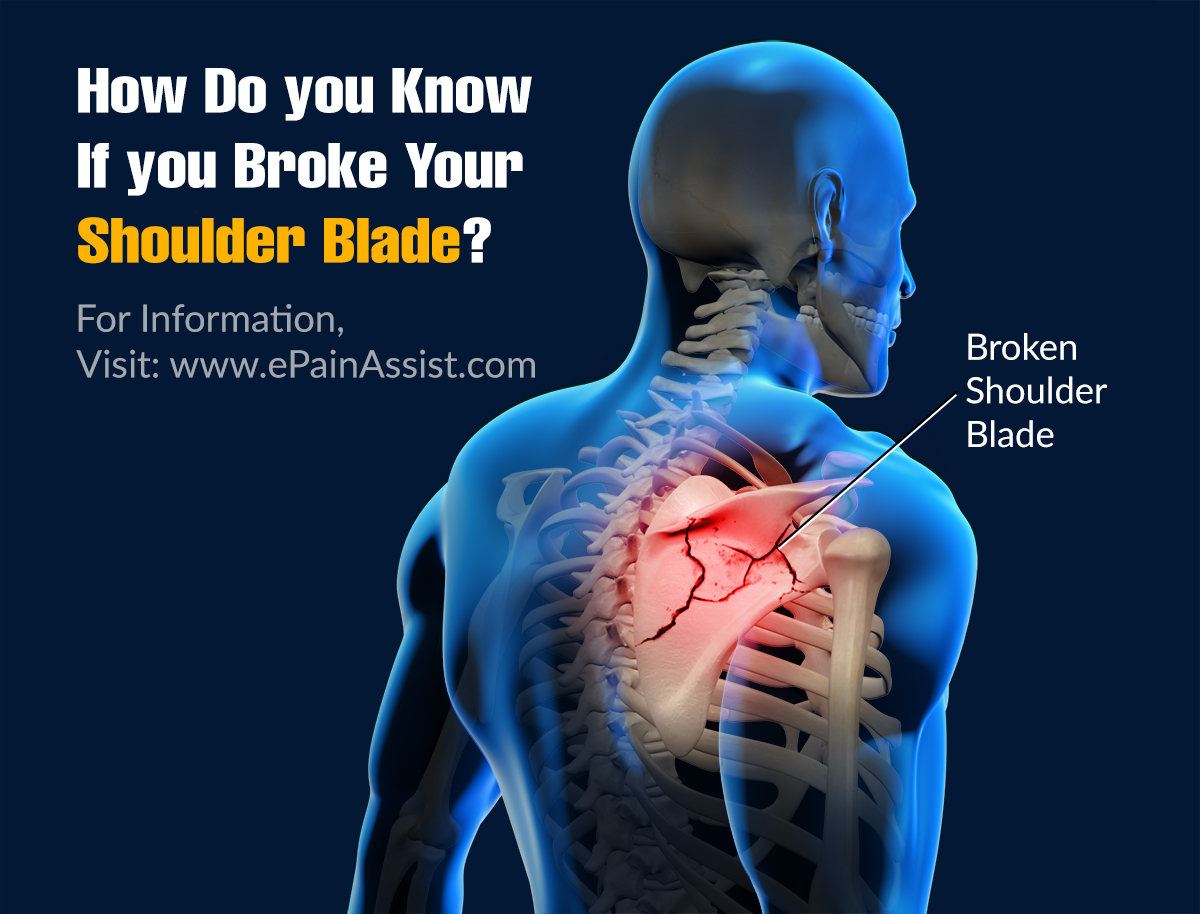 How Do You Know If You Broke Your Shoulder Blade?
