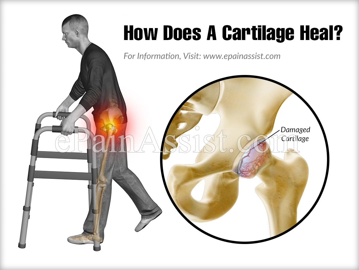 How Does A Cartilage Heal?