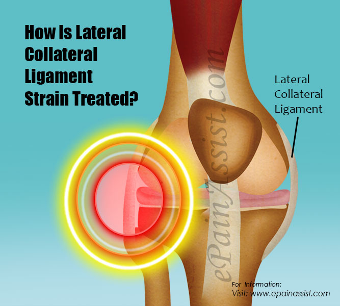 How Is Lateral Collateral Ligament Strain Treated?