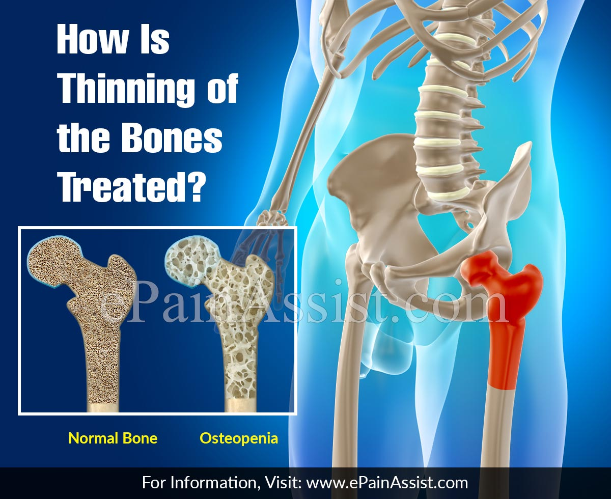 How Is Thinning of the Bones Treated?