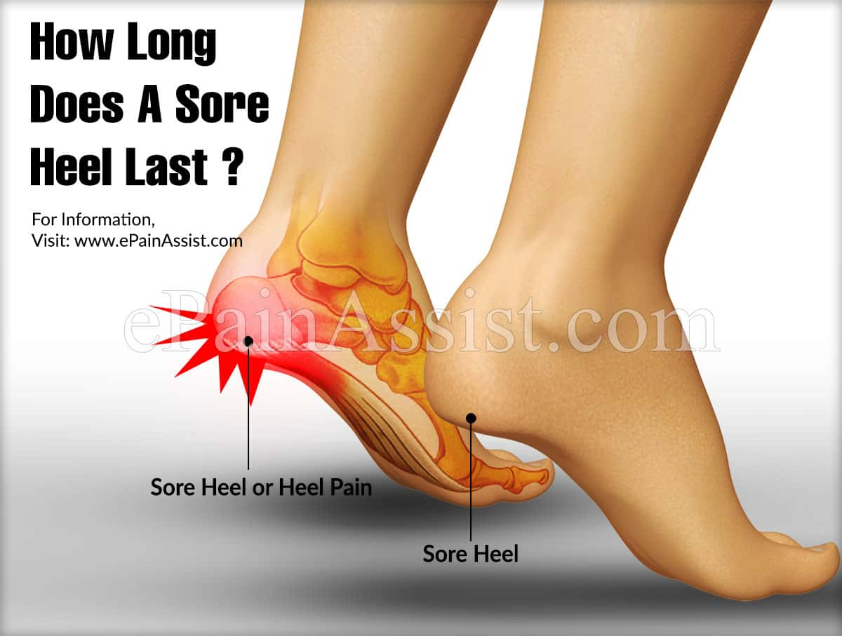 How Long Does A Sore Heel or Heel Pain Last?