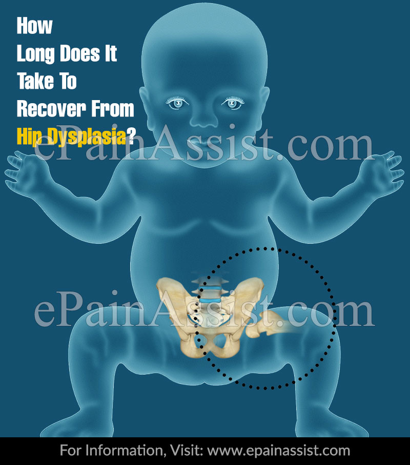 How Long Does It Take To Recover From Hip Dysplasia?