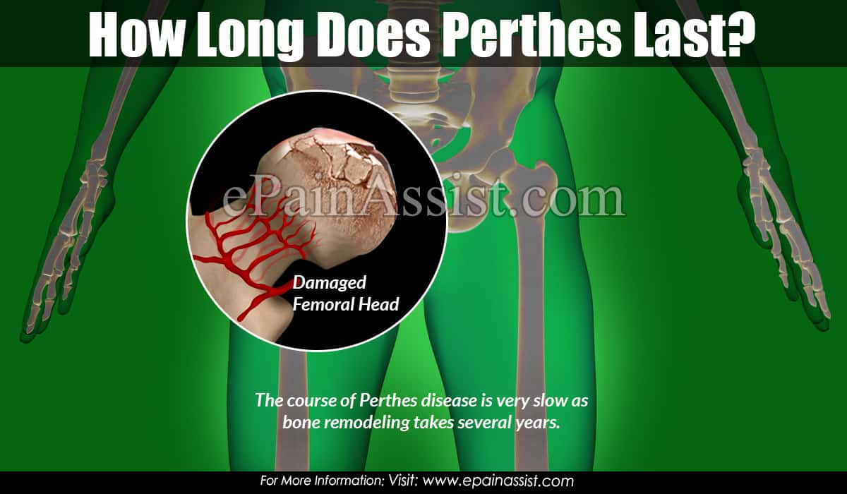 How Long Does Perthes Last?