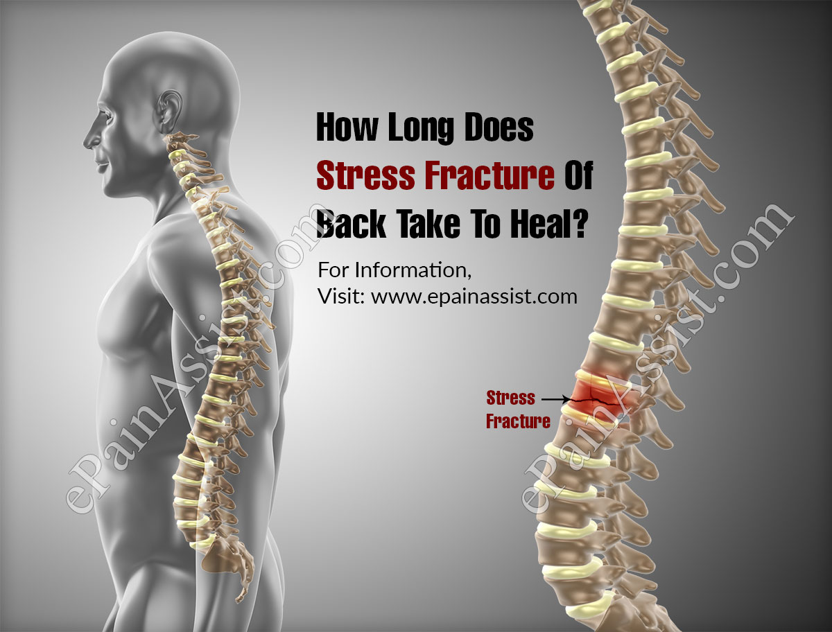 How Long Does Stress Fracture Of Back Take To Heal?