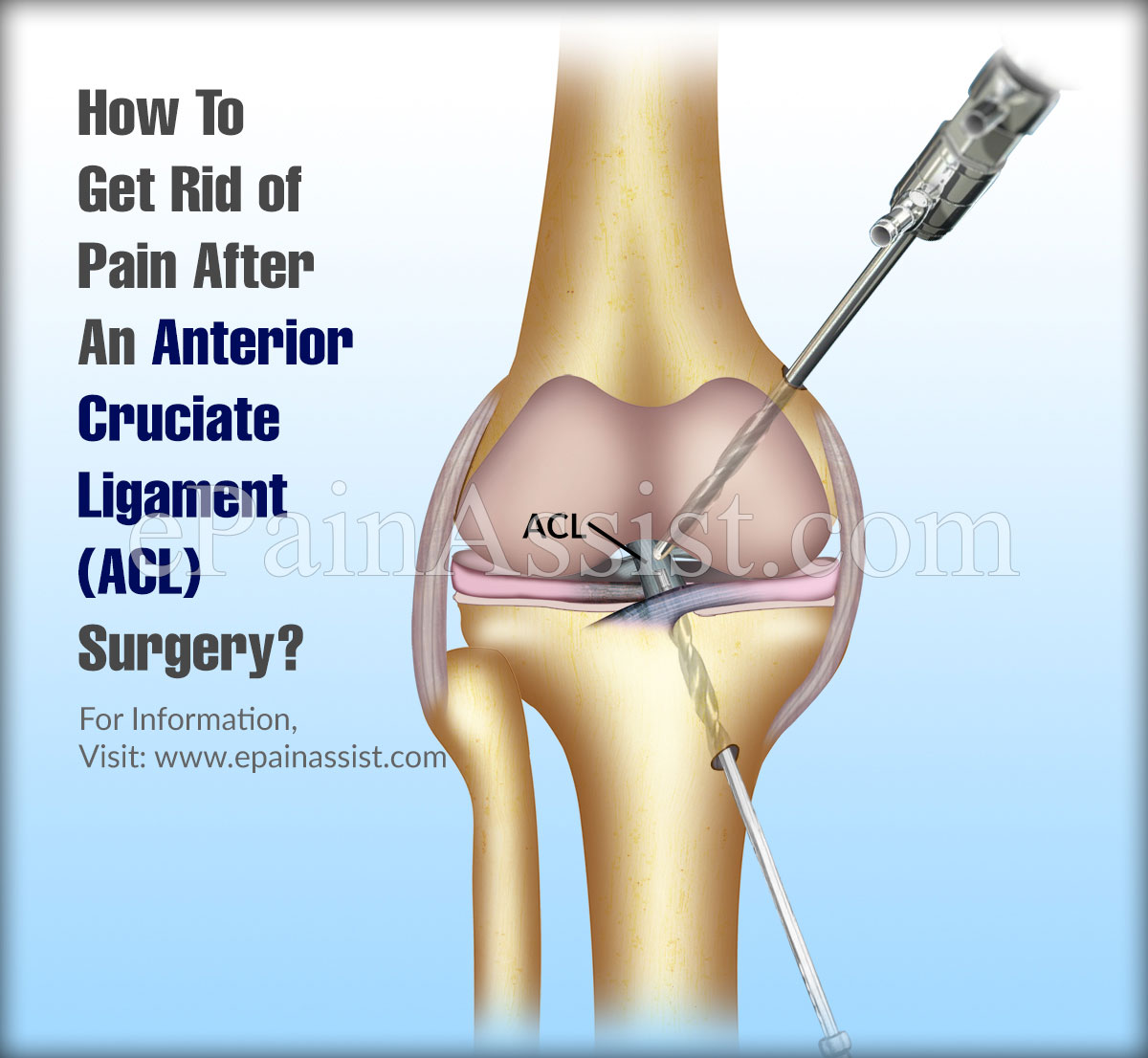 How To Get Rid of Pain After An Anterior Cruciate Ligament (ACL) Surgery?