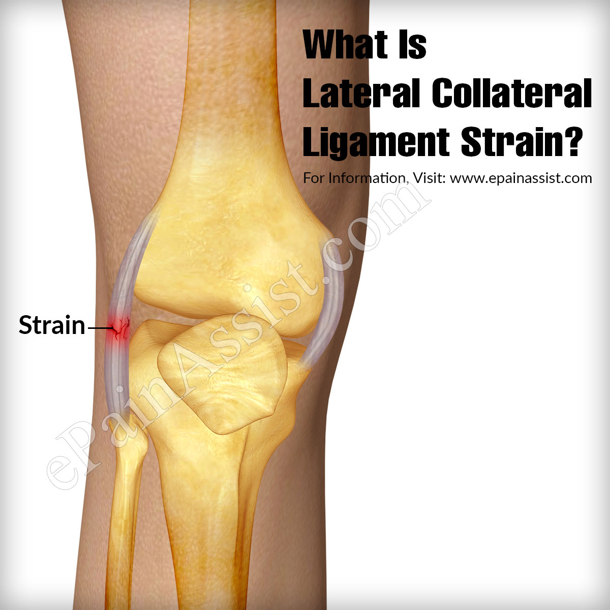 What Is Lateral Collateral Ligament Strain?