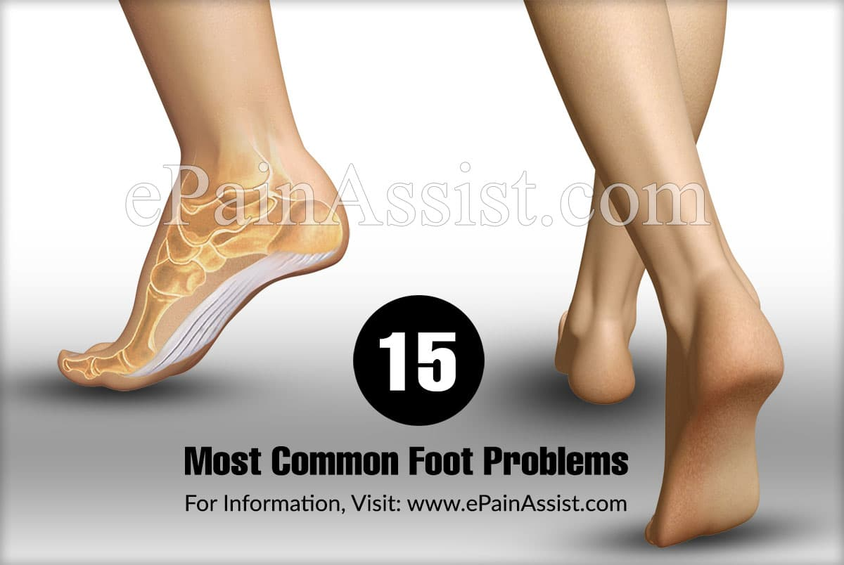 15 Most Common Foot Problems