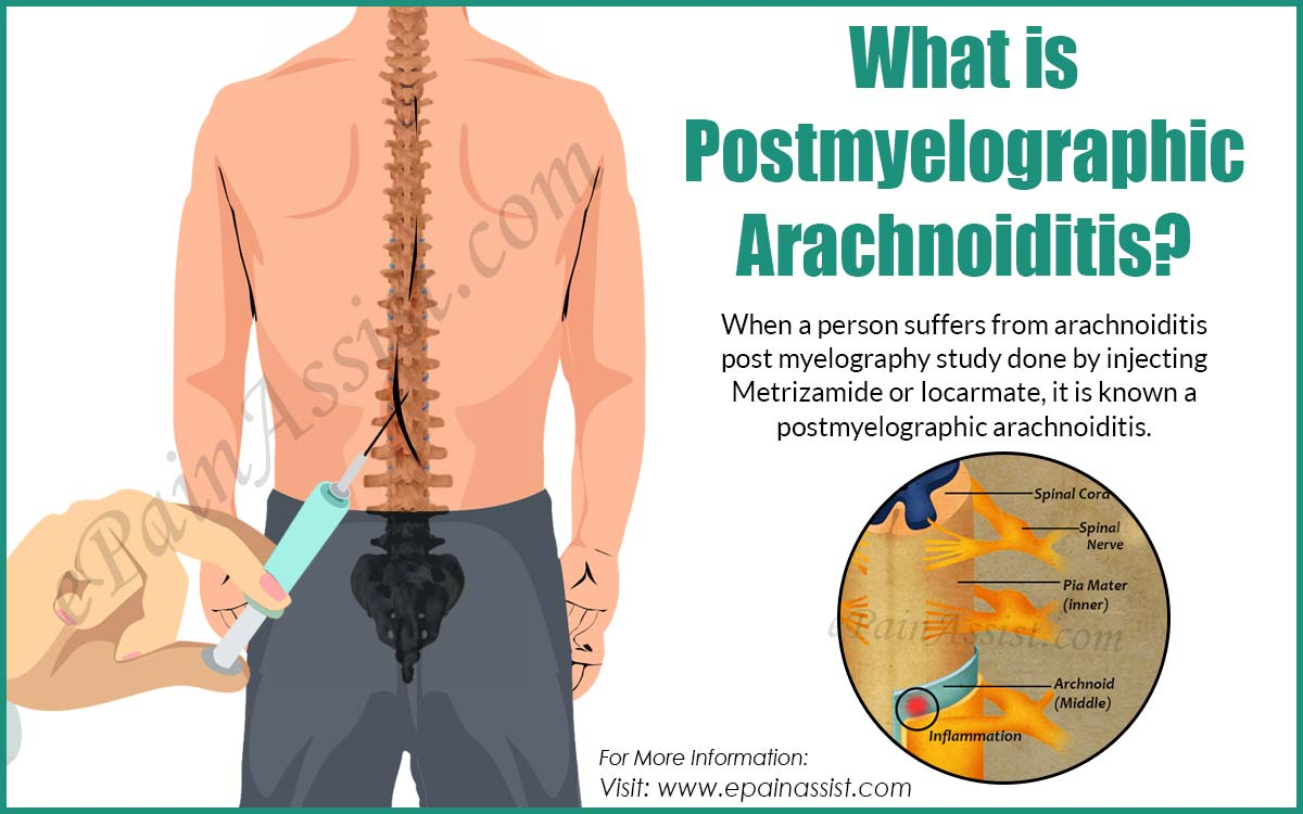 What is Postmyelographic Arachnoiditis?