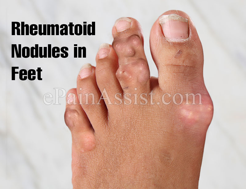 Rheumatoid Nodules  in Feet