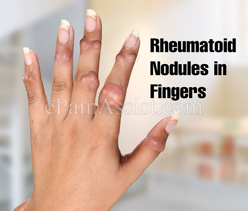 Rheumatoid Nodules in Fingers, Treatment Of Rheumatoid Nodules