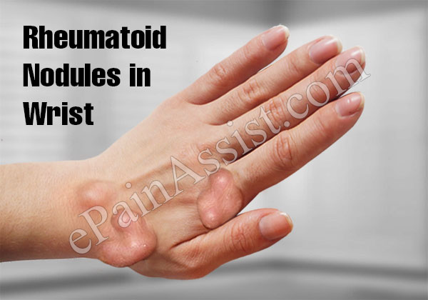 Rheumatoid Nodules  in Wrist, What Causes Rheumatoid Nodules?