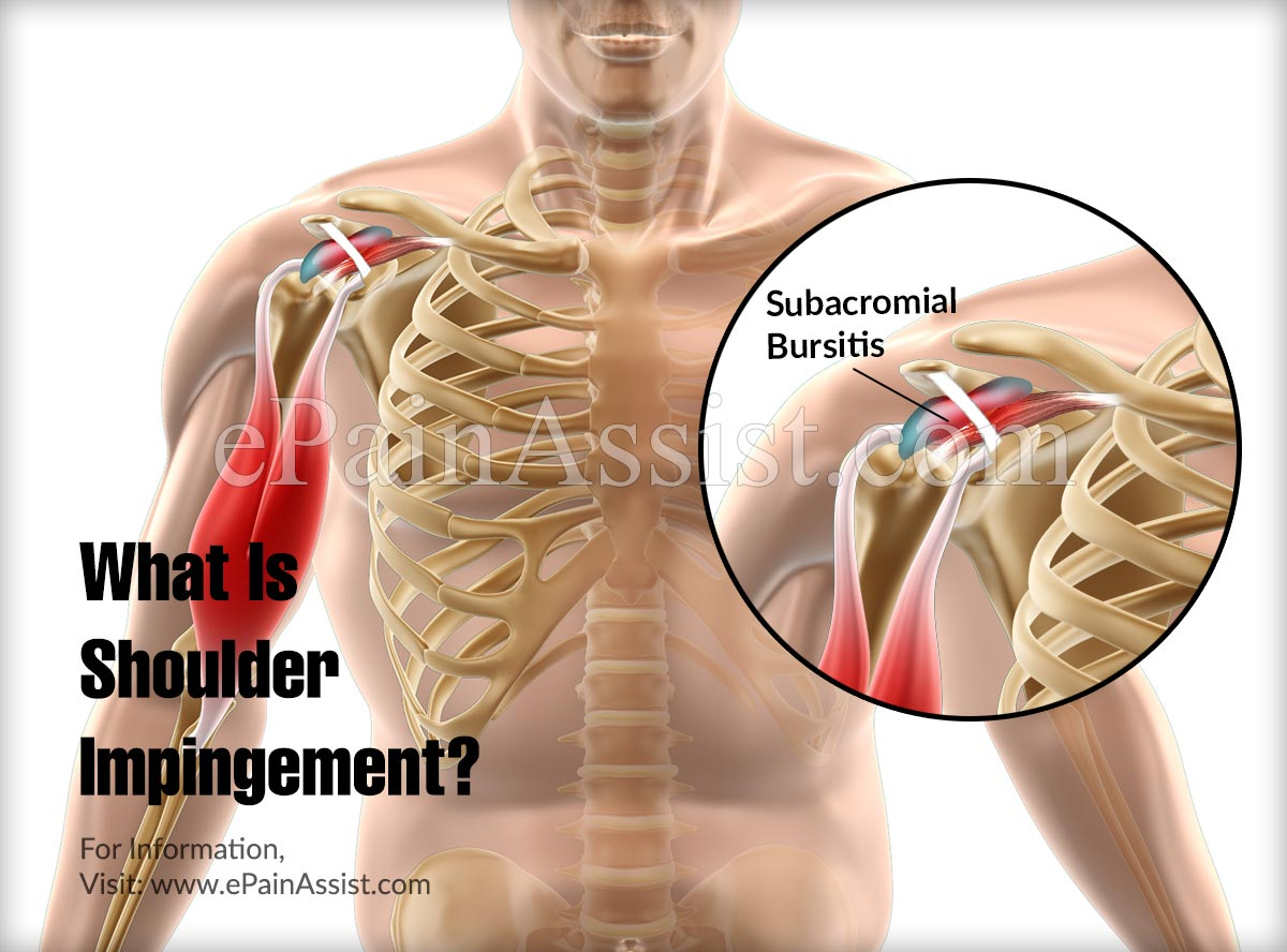 What Is Shoulder Impingement & How is it Caused?