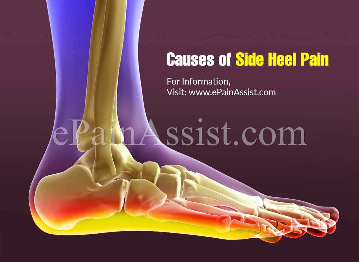 Causes of Side Heel Pain